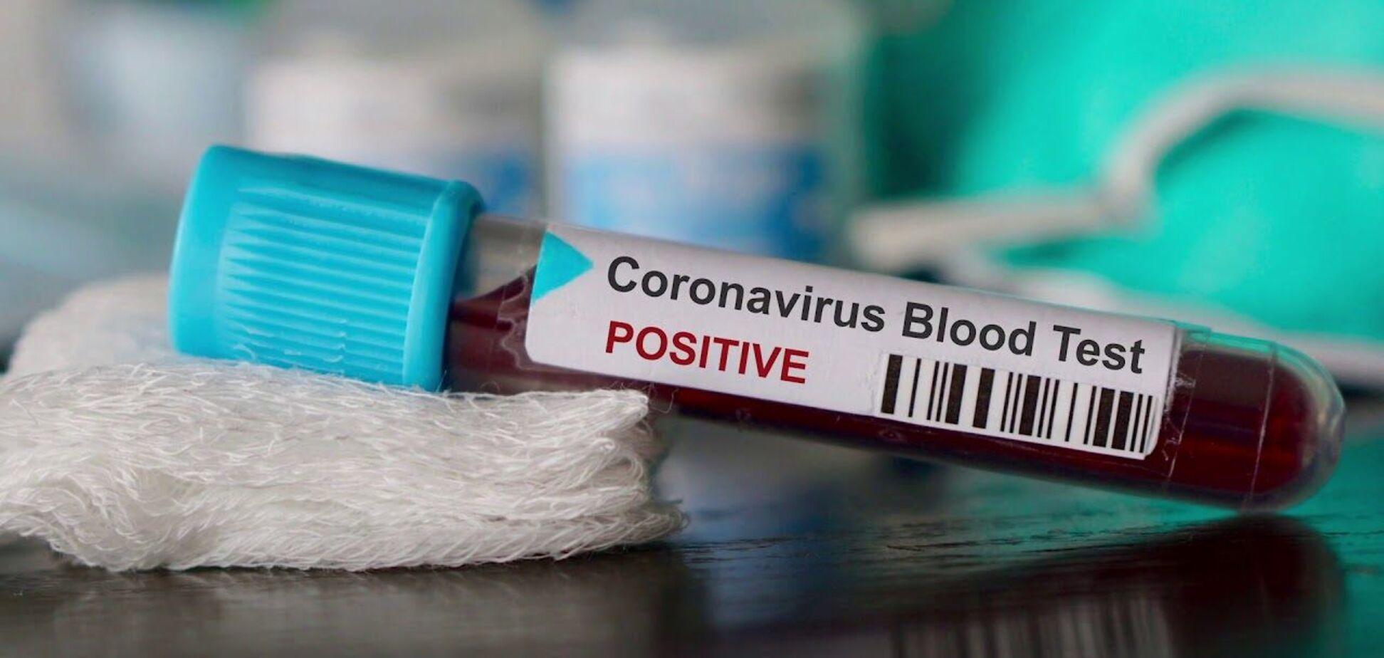 В Днепре обнаружили новые случаи заражения COVID-19: актуальная статистика