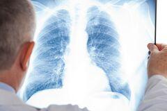 Ученые выяснили, как COVID-19 развивается в легких