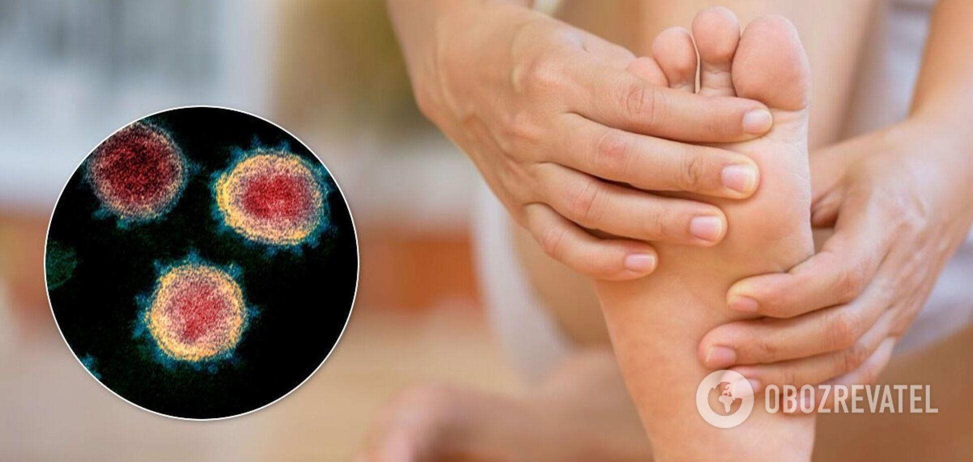 Прояви COVID-19 на шкірі залишаються навіть після одужання
