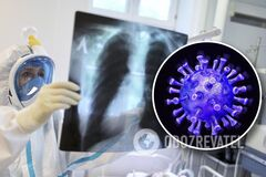 Лікарі розповіли, як відновитися після COVID-19