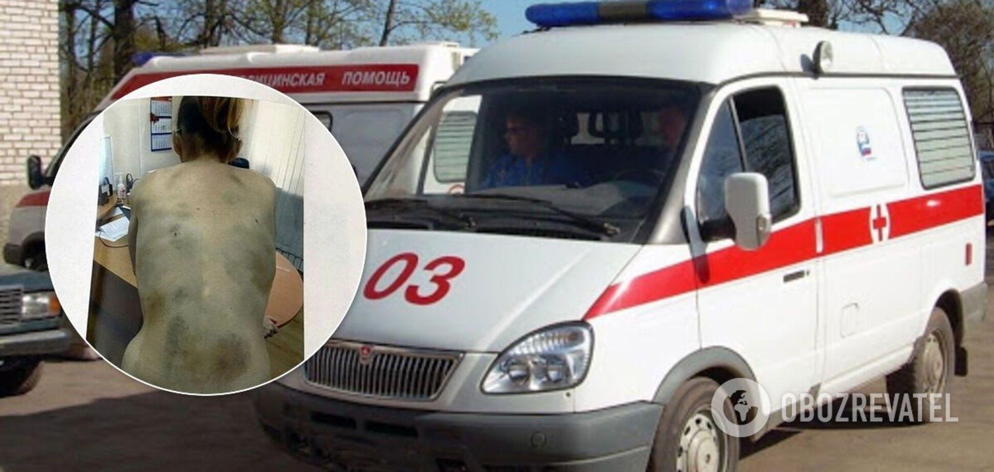 У Росії чоловік-нелюд бив і морив голодом сім'ю: жінка схудла до 35 кг. Фото 18+