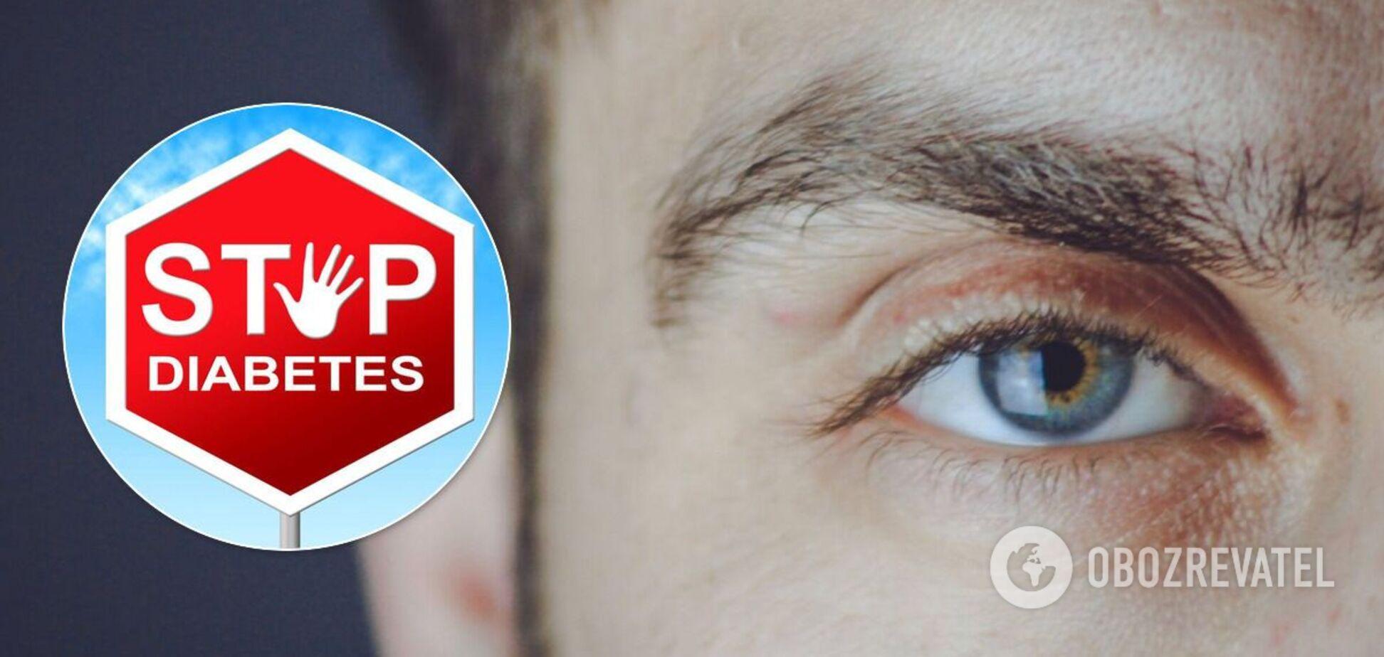 Цукровий діабет і його вплив на зір