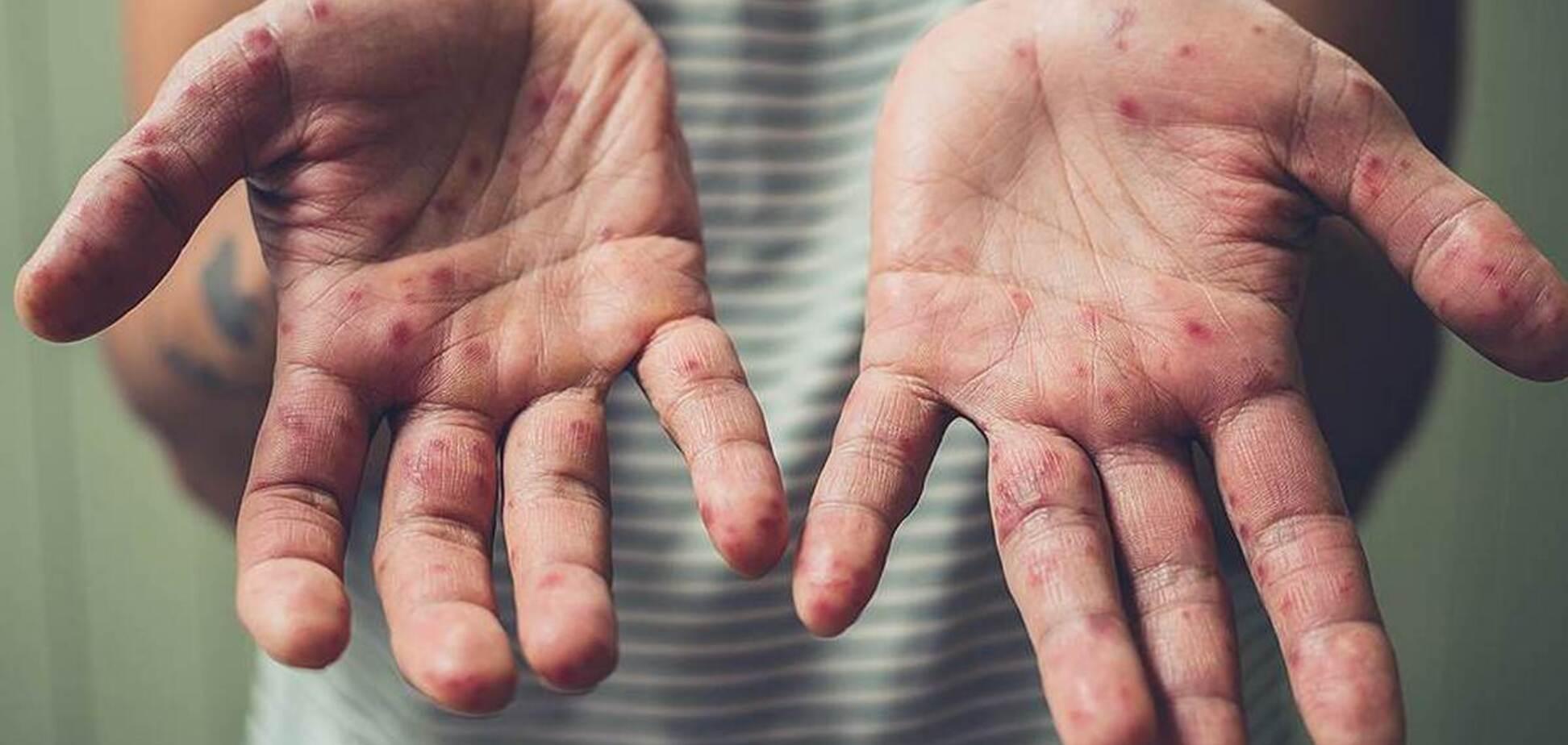 У 2019 року в світі від кору померло більше 200 тисяч чоловік