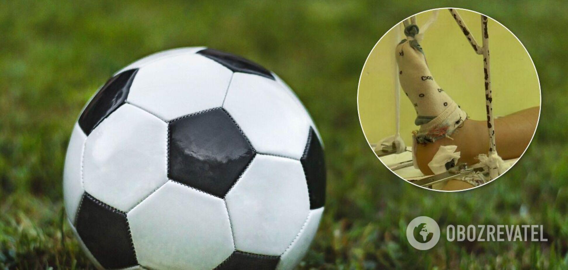 Ребенок сломал ногу во время игры в футбол