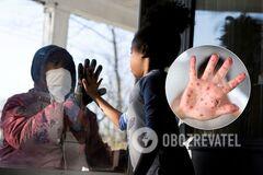 Пандемія COVID-19 може призвести до спалахів кору