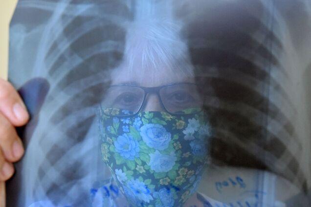 У COVID-19 и онкологии бывают разные симптомы