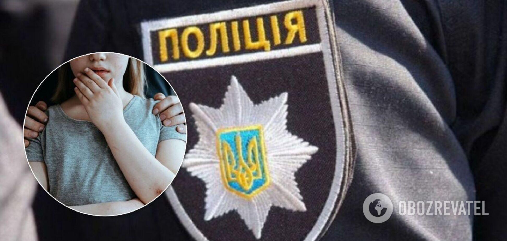 В Запорожье мужчину заподозрили в развращении 11-летней родственницы