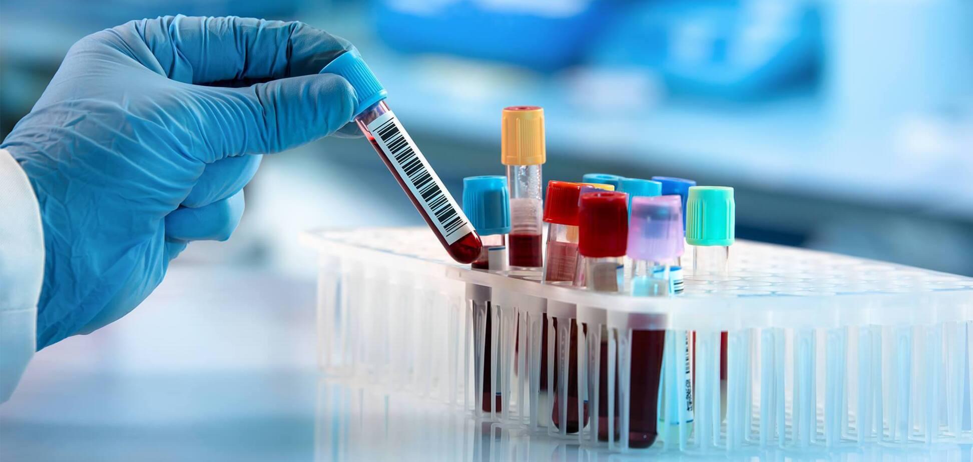 Перебіг COVID-19 можна передбачити за загальним аналізом крові – дослідження