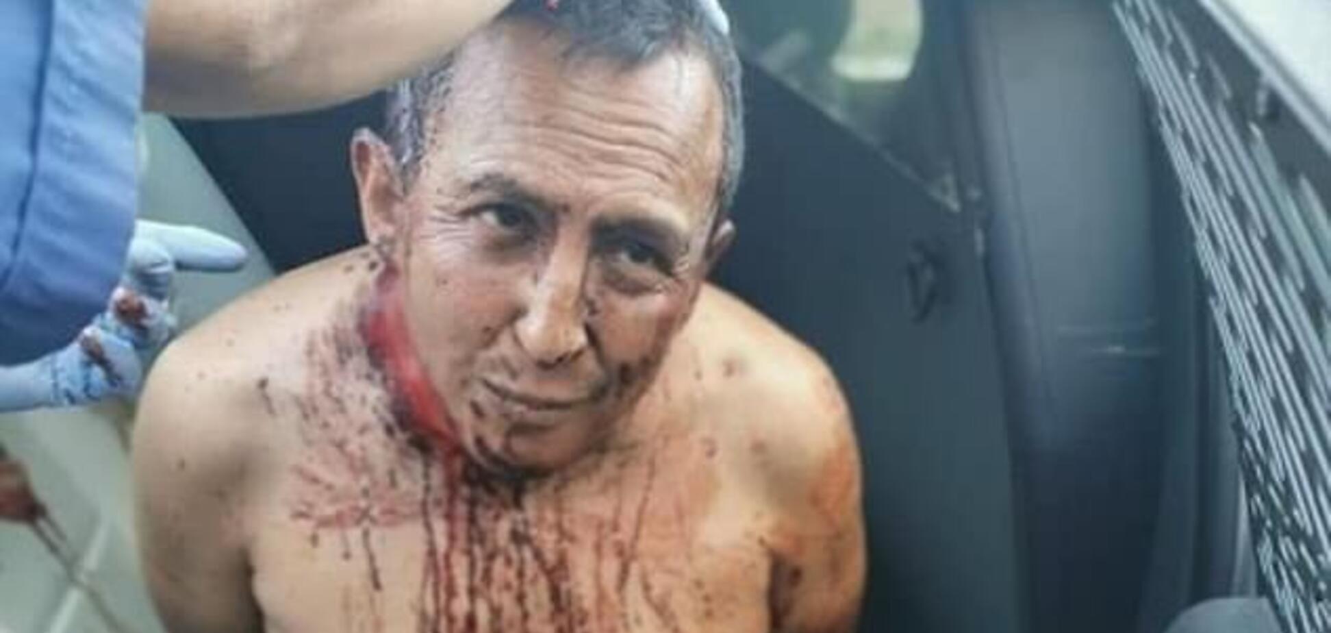 Зняв шкіру, вирізав очі і розчленував дружину: в Мексиці повстали через звіряче вбивство. Фото і відео 18+