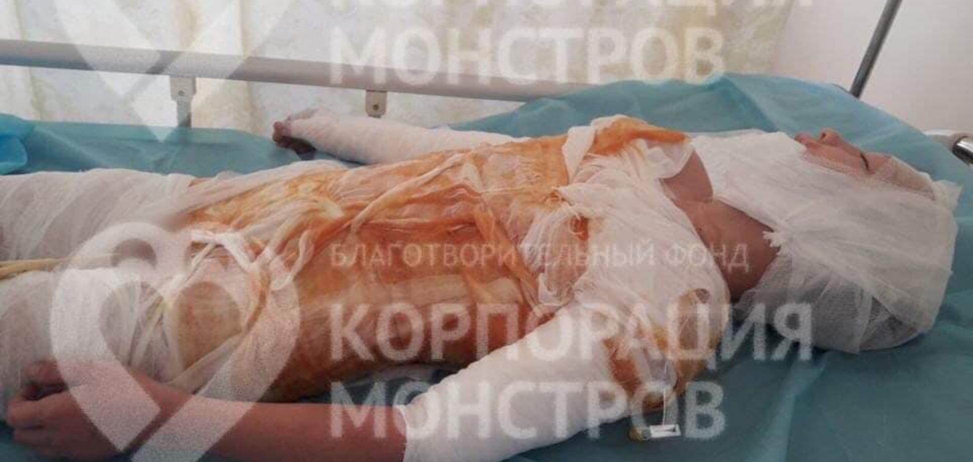 На Одещині дитина потрапила до лікарні з жахливими опіками