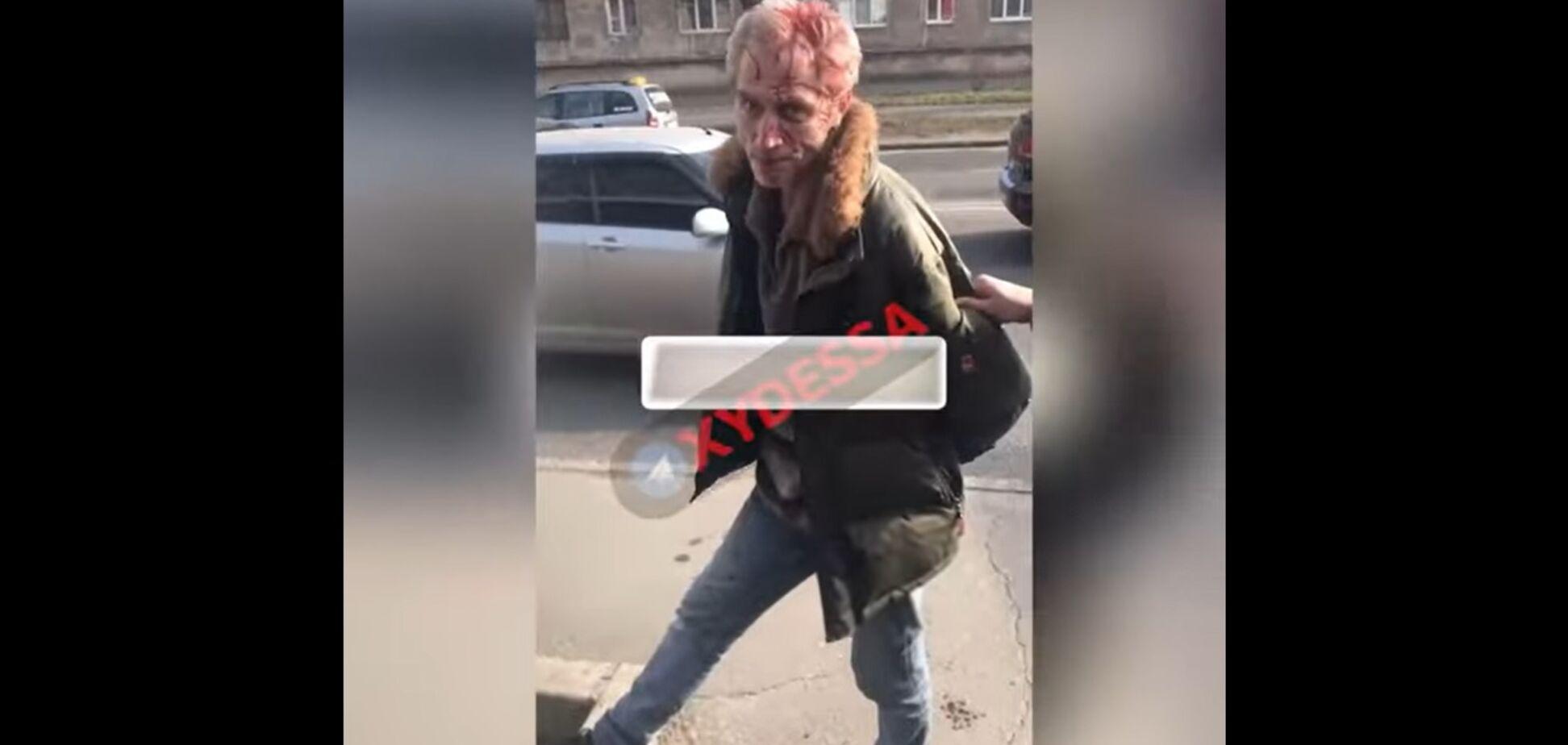 В Одессе неадекват посреди улицы расстрелял семью прохожих