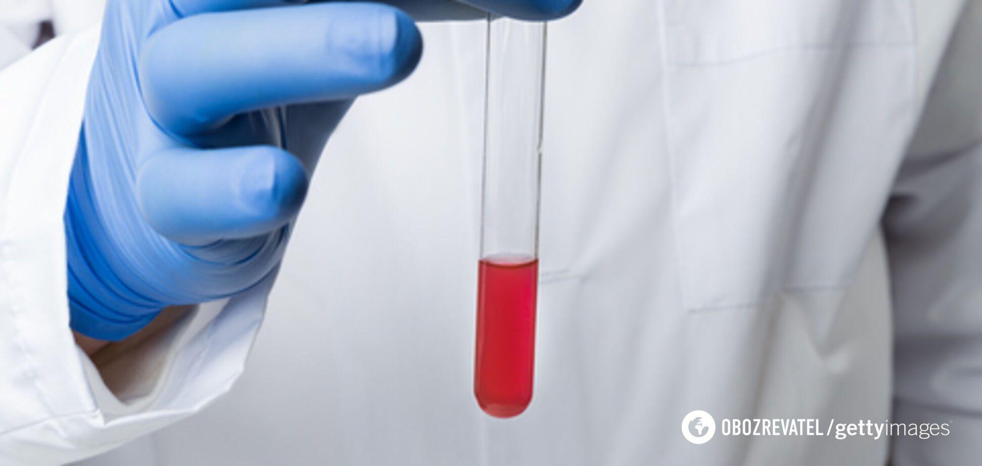 В Італії кількість заражених коронавірусом різко зросла в 8 разів