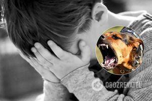В Днепре собака напала на ребенка возле школы: в сети возмущены