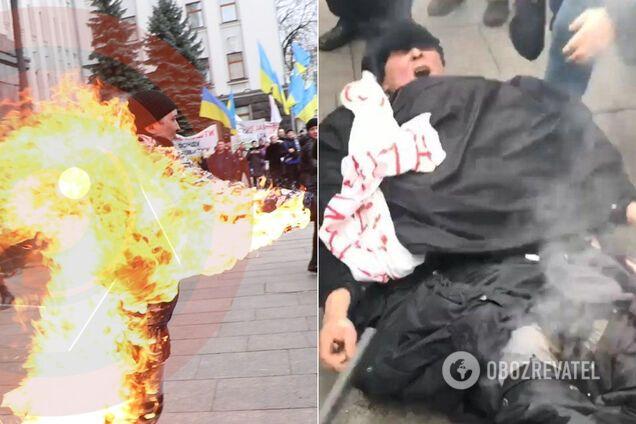 В Киеве под ОПУ мужчина поджег себя. Стало известно о его состоянии