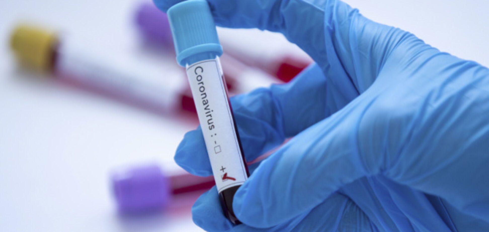 Коронавірус чи застуда: лікар назвав 5 відмінностей
