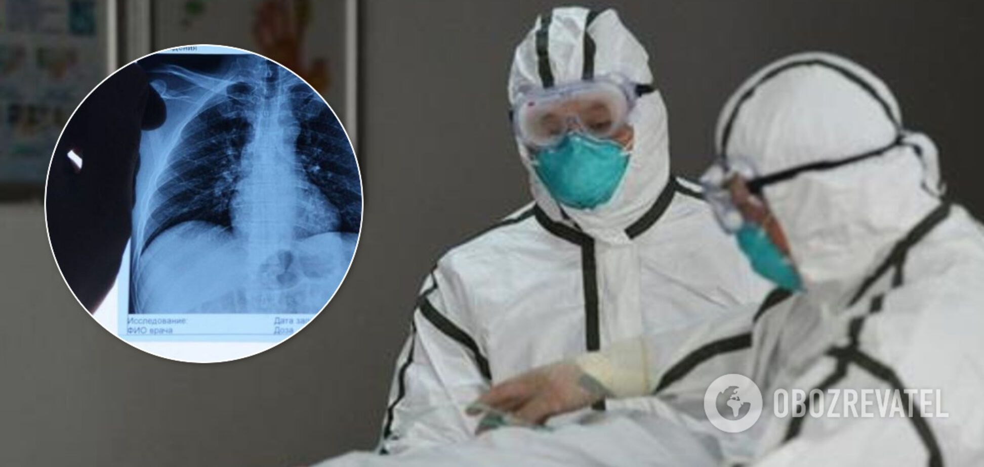 Коронавірус вражає єдиний орган: результати розтину здивували