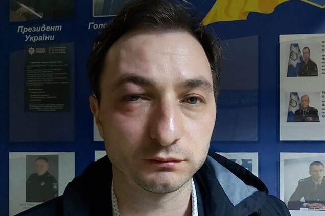 """""""Він врятував мене"""": Соколова заступилася за побитого головного лікаря Інституту раку"""