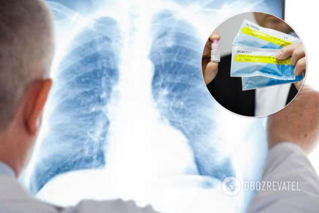 У Києві відмовилися перевірити на коронавірус хвору пневмонією