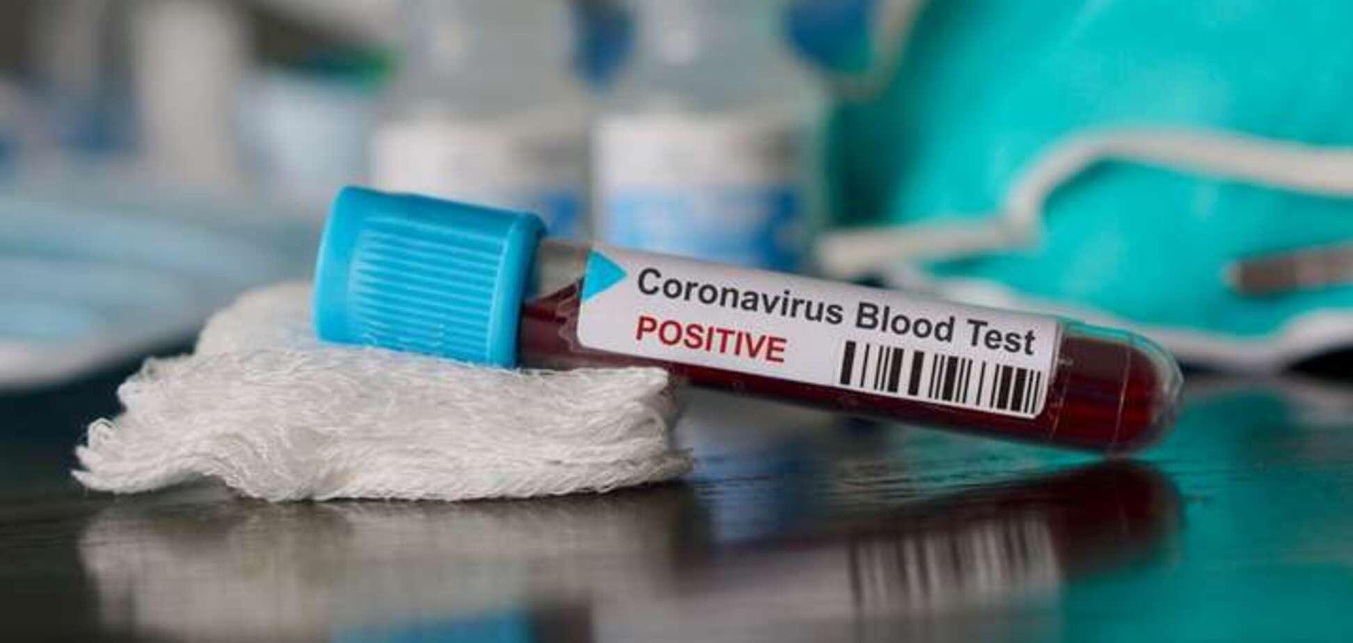 Тест на коронавірус. Джерело: Главком