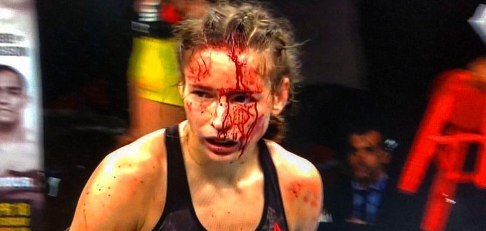 Избитая рекордсменка UFC Марина Мороз развернула в больнице флаг Украины