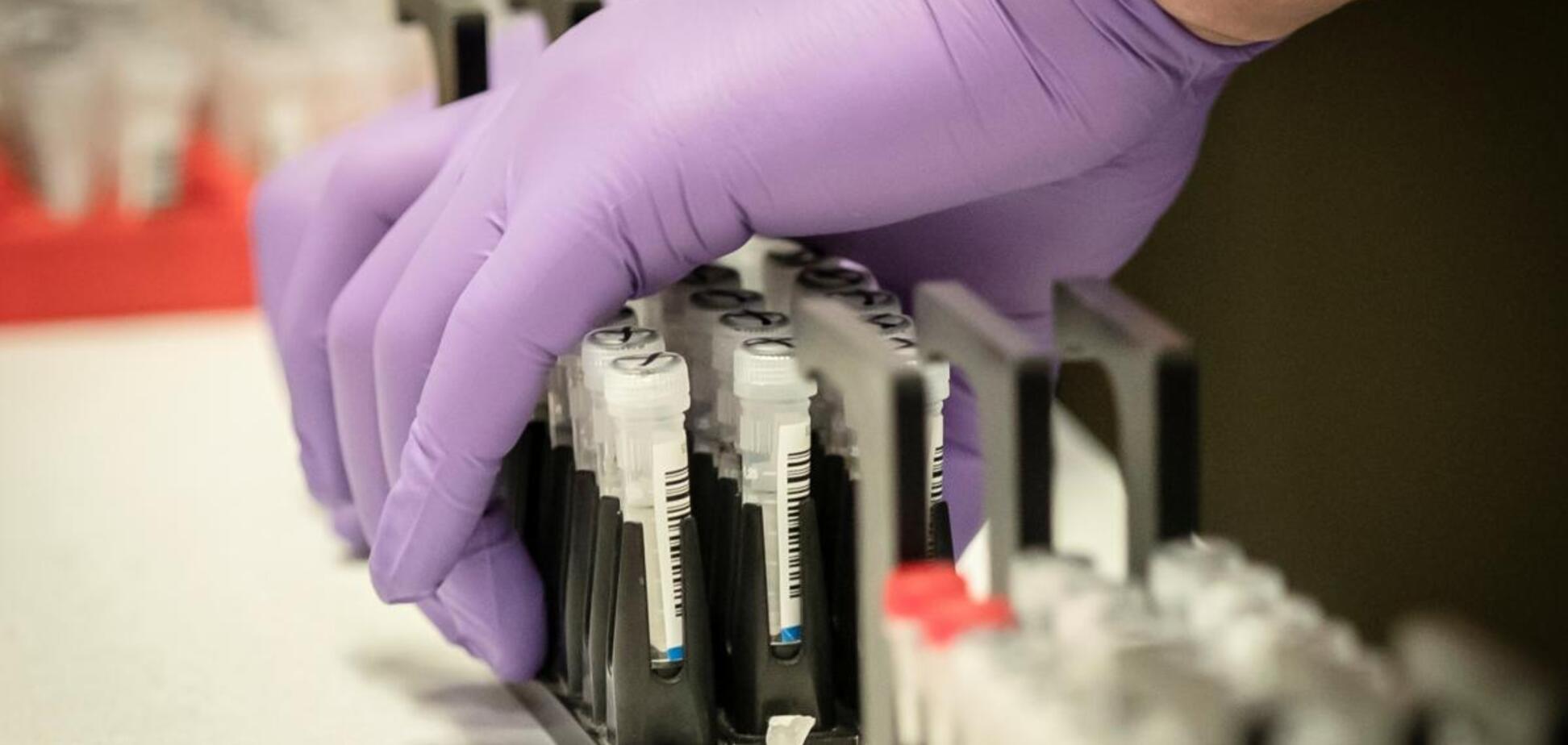 Україна отримала тест-системи для перевірки 50 тисяч осіб на коронавірус