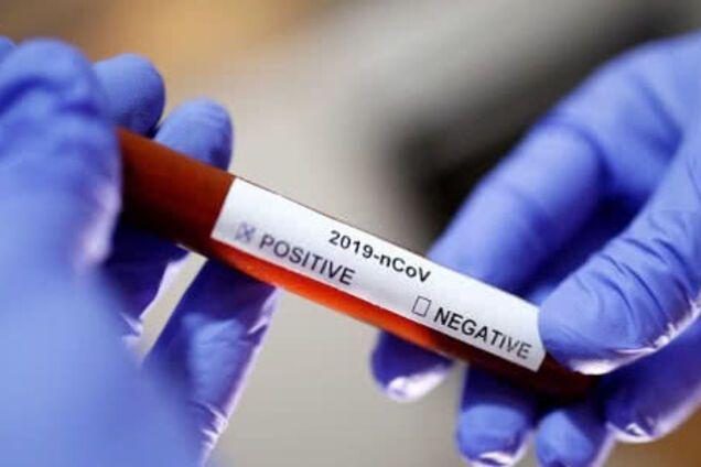 Одеські медики витратили всі наявні експрес-тести на коронавірус