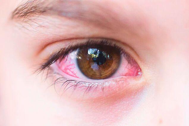 Як відрізнити коронавірус від кон'юнктивіту: лікарка назвала ознаки
