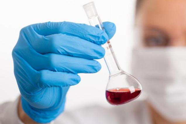 На Ривненщине обнаружили 9 случаев коронавируса, 1 – летальный