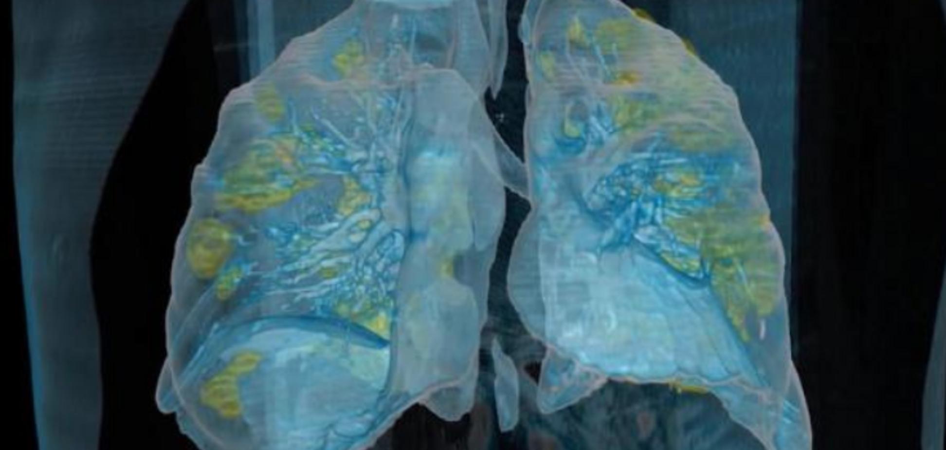 Коронавірус руйнує легені: лікарі показали страшні кадри