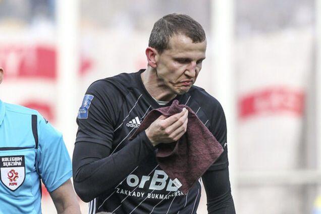 Курйоз року: польський футболіст бив по воротах і зламав собі ніс