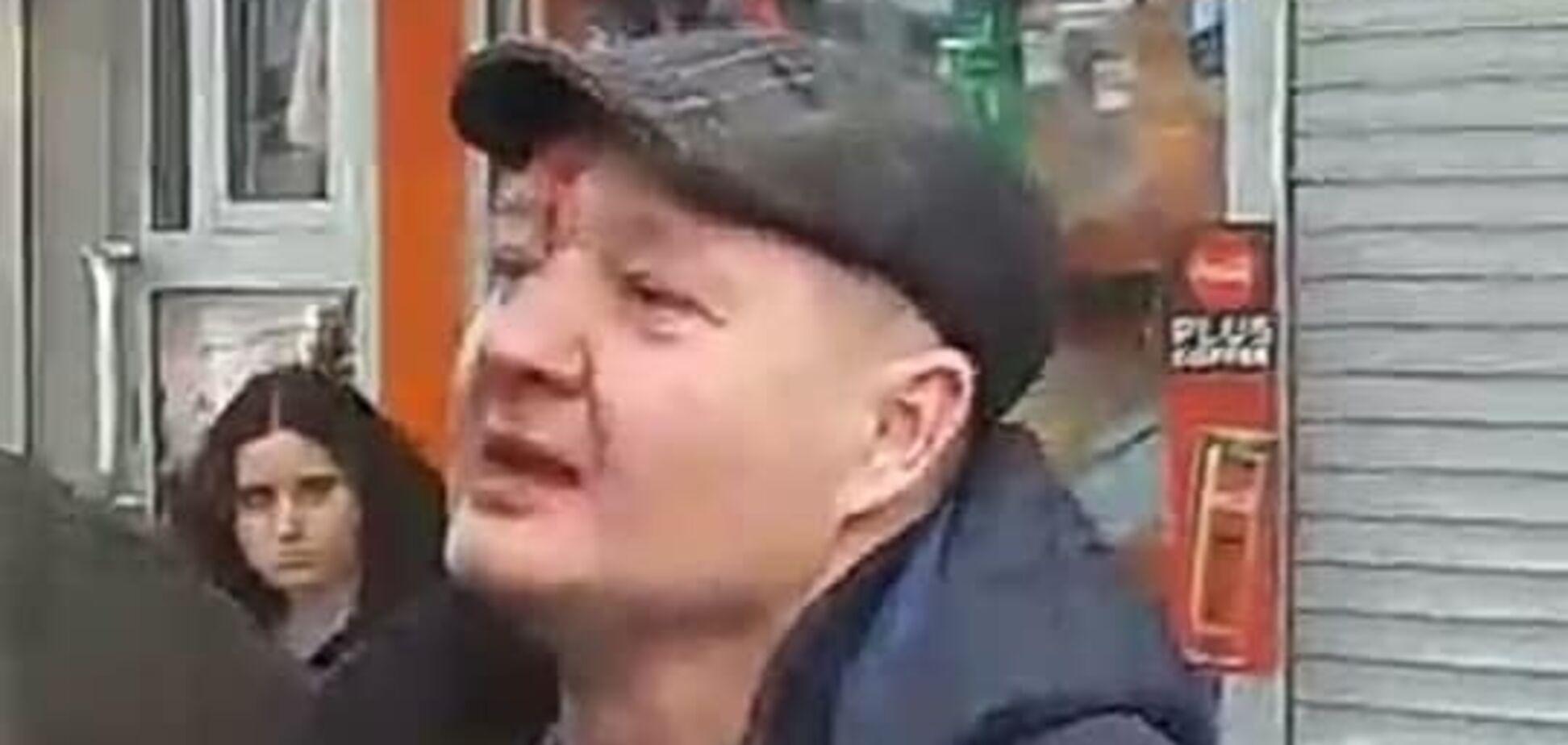 Полицейской разбили нос в маршрутке в Киеве: выяснились скандальные детали об обидчике