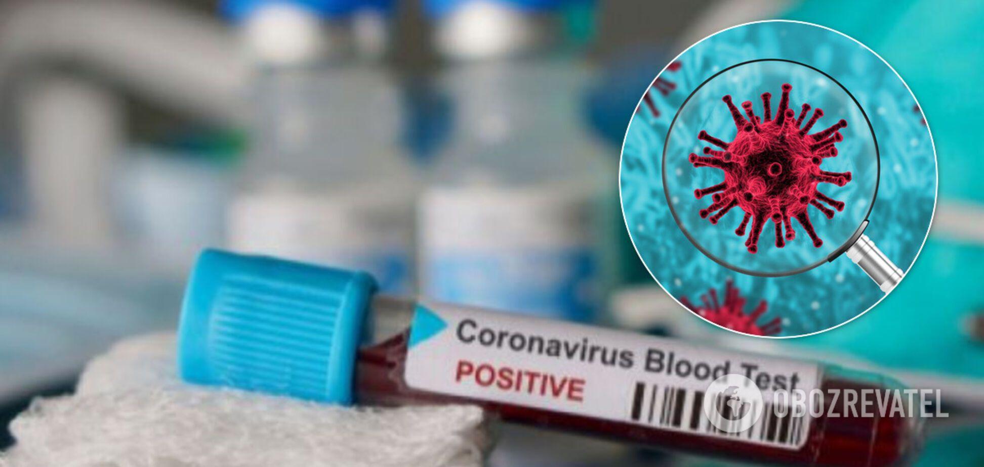 В крови больных нашли антитела, убивающие коронавирус