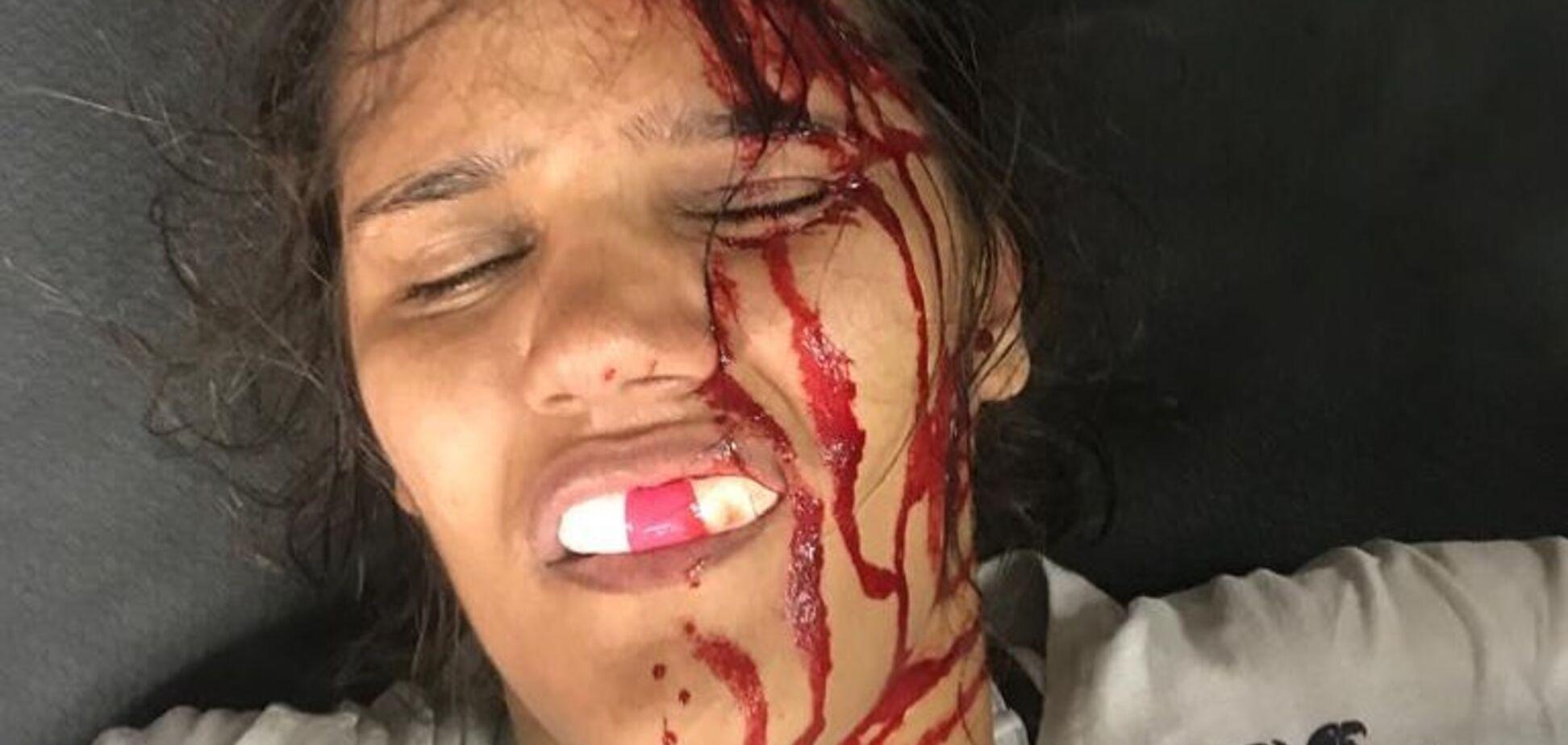 Збоченець нарвався на 'Чудо-жінку' Марію Рібейро з ММА і був побитий