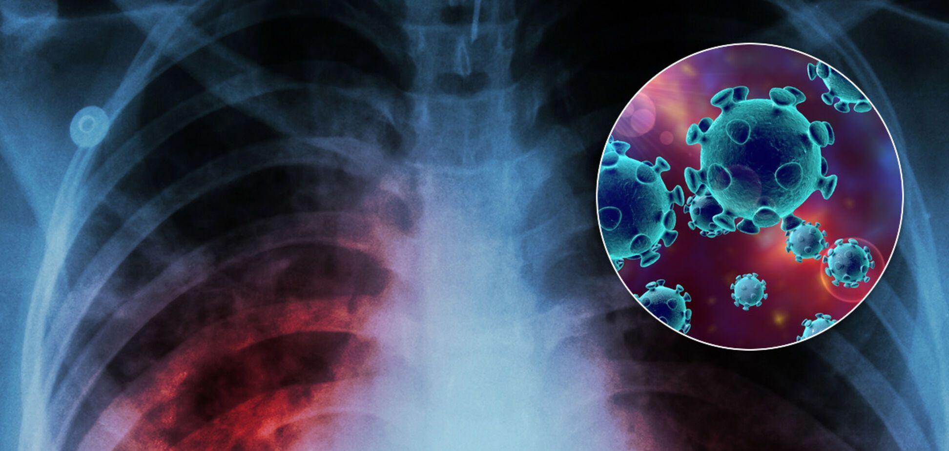 Може загинути 1,4 мільйона: після пандемії COVID-19 світу загрожує нова небезпека