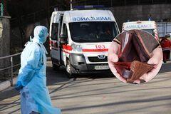 В Украине разгорелся скандал из-за нищенских окладов медиков. Врачи подняли бунт