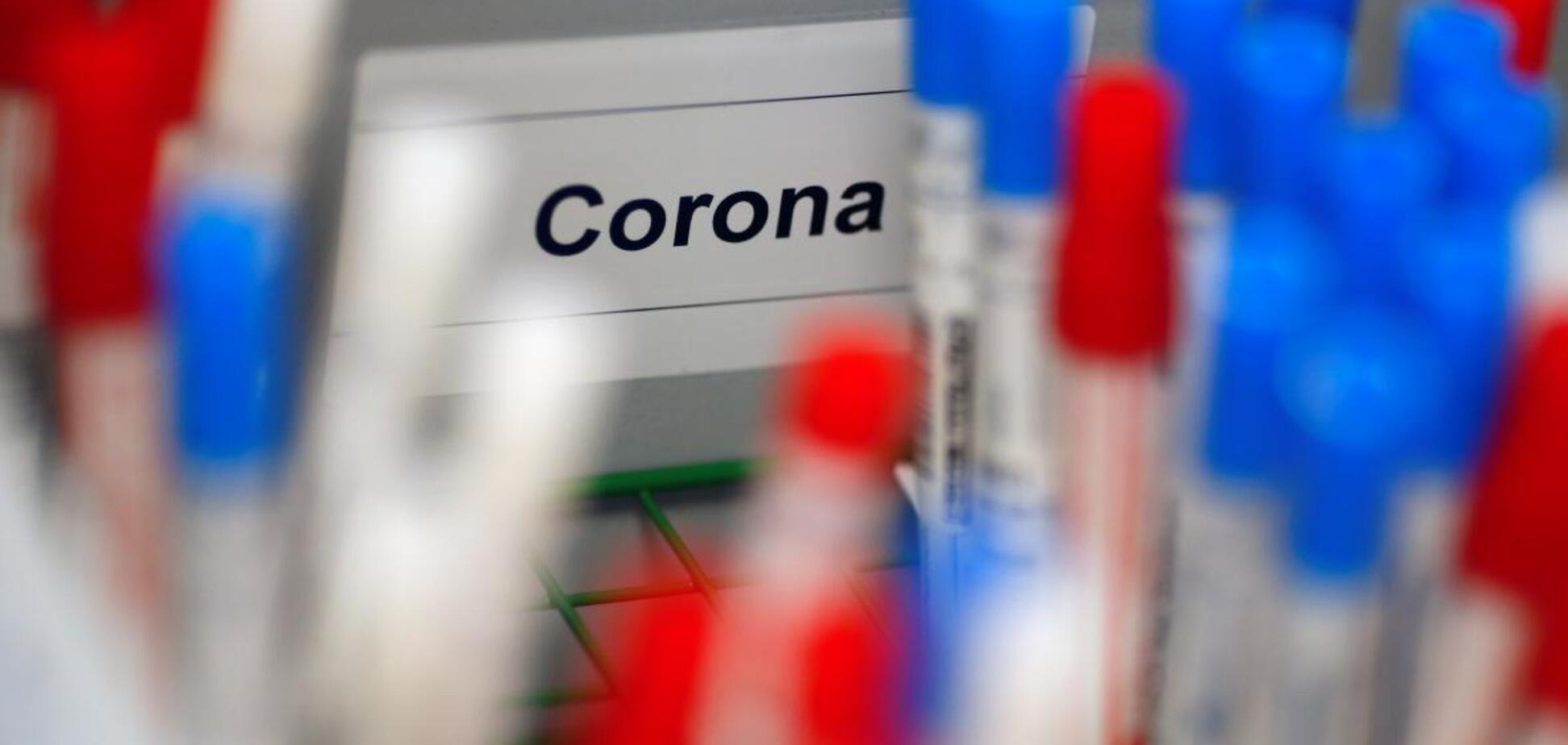 Происхождение коронавируса: единственная версия на сегодня