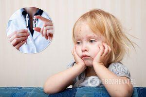 В Україні критично впав рівень вакцинації проти кору: Степанов пояснив небезпеку