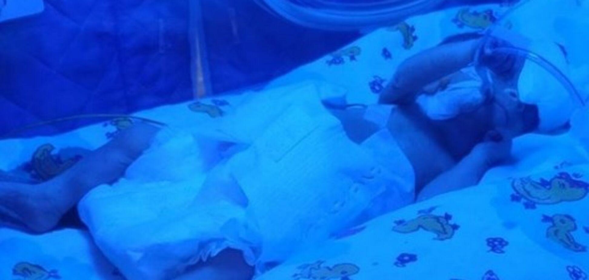 У Запоріжжі 16-річна дівчина народила дитину вагою менше 700 грамів: лікарі намагаються її врятувати