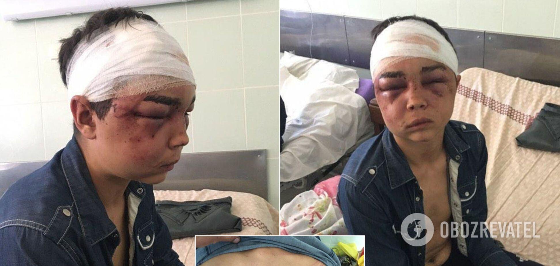 На Харьковщине двоих мужчин обвинили в избиении и изнасиловании 17-летнего. Фото 18+