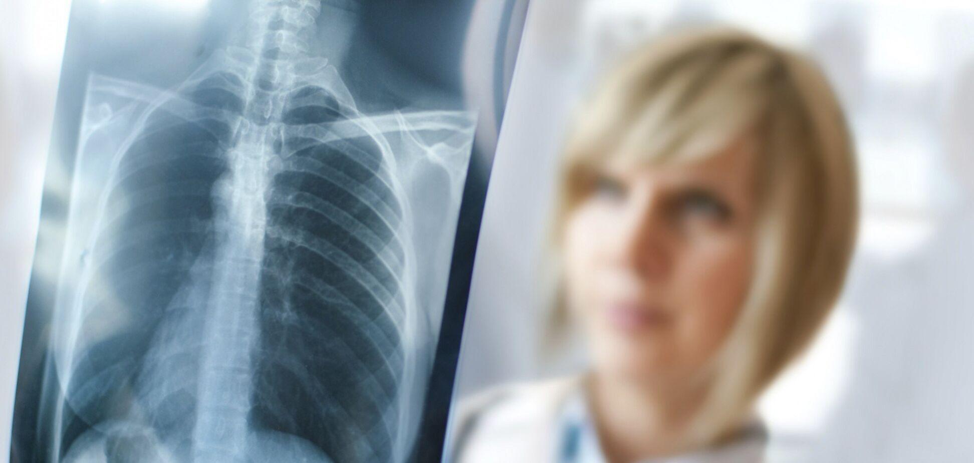 Сколько времени легкие восстанавливаются после коронавируса: врач дал ответ