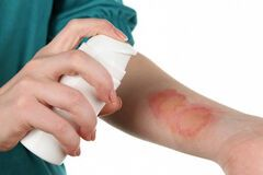 Проблемы с кожей летом: врач из Днепра рассказала о первой помощи и опасностях