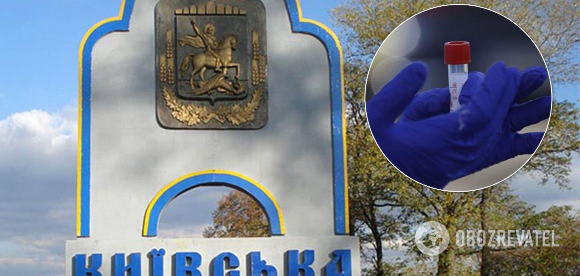 Коронавирус на Киевщине забрал еще одну жизнь. Иллюстрация