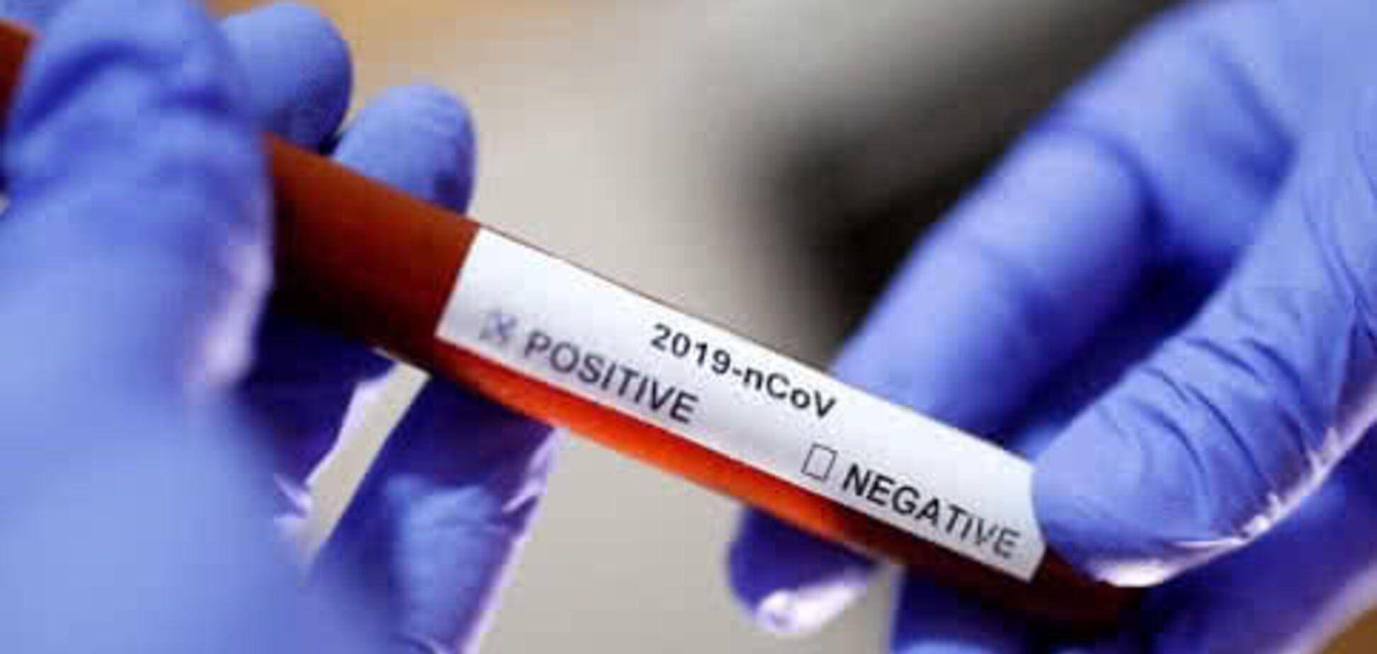 В Днепре зафиксировали новый смертельный случай коронавируса: свежая статистика