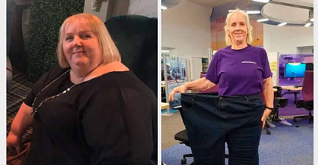 Сбросила 102 кг: женщина поделилась секретом успешного похудения и удивила фото