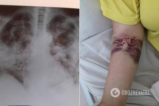 Врач показала фото из COVID-центра на Закарпатье: скорые ежедневно привозят новых больных