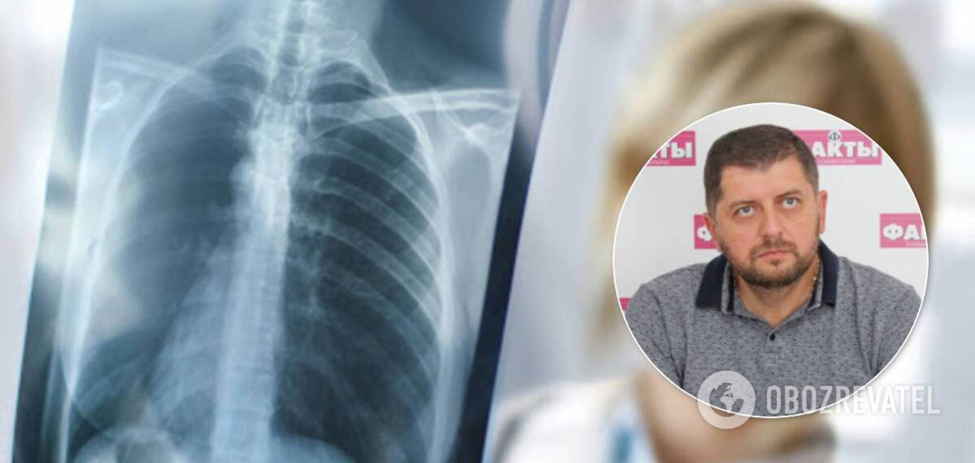 Вирусная пневмония часто развивается молниеносно, – Евгений Симонец
