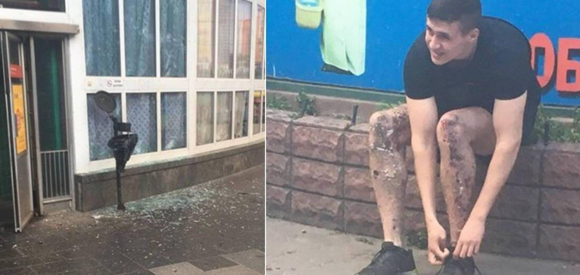 У результаті вибуху біля метро в Києві постраждало 4 людини