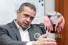 Мінімальний шанс вийти сухим з води, – Лещенко про справу Новака