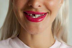 К чему снятся выпадающие зубы