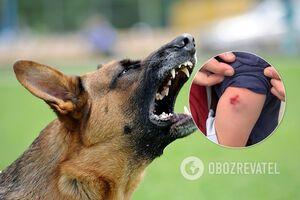 В Днепре агрессивные собаки нападают на горожан: хозяевам грозит серьезный штраф